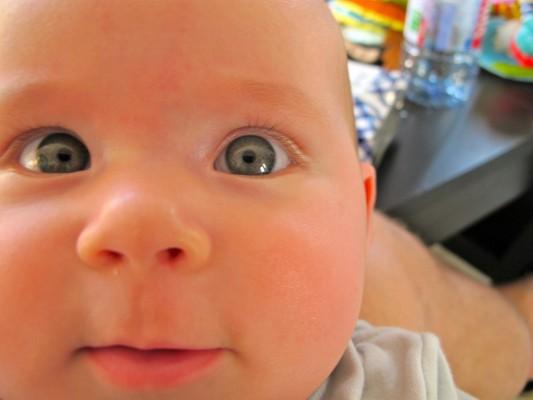 Bébé atteint d'un léger strabisme