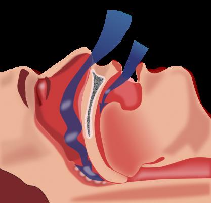 Schéma montrant l'obstruction des voies respiratoires qui conduite à l'apnée du sommeil