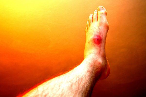 Pied avec une inflammation marquée