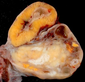 Photo d'un ovaire avec un corpus luteum à son maximum
